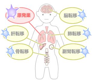 肺がんについて| からすま和田...